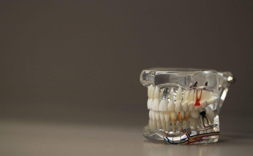 Zła sposób odżywiania się to większe deficyty w zębach natomiast także ich zgubę